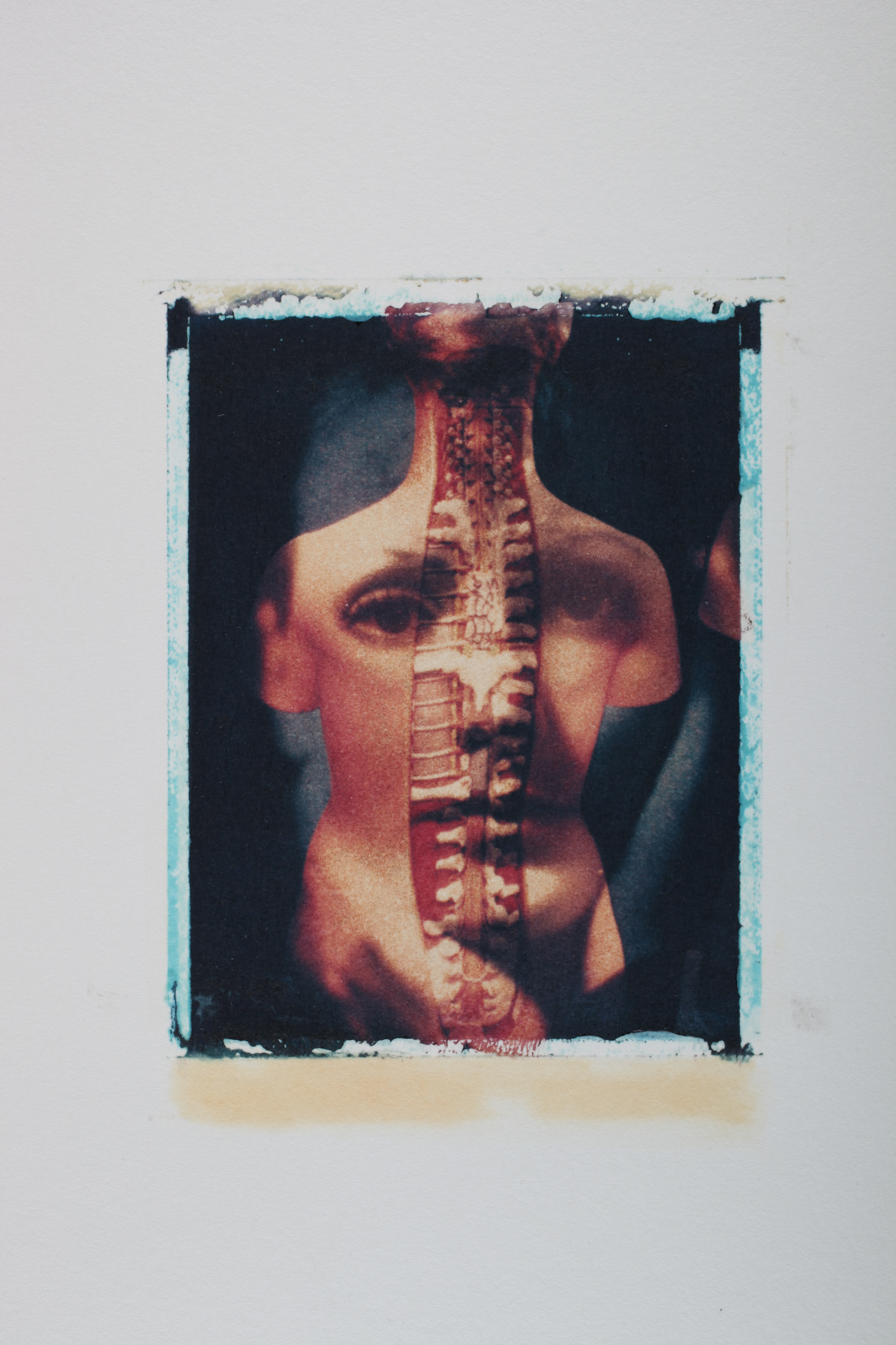 Multi-layered Polaroid image by Robert Seydel with woman's face and body with spine exposed